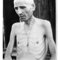 Emaciated male survivor at Mauthausen